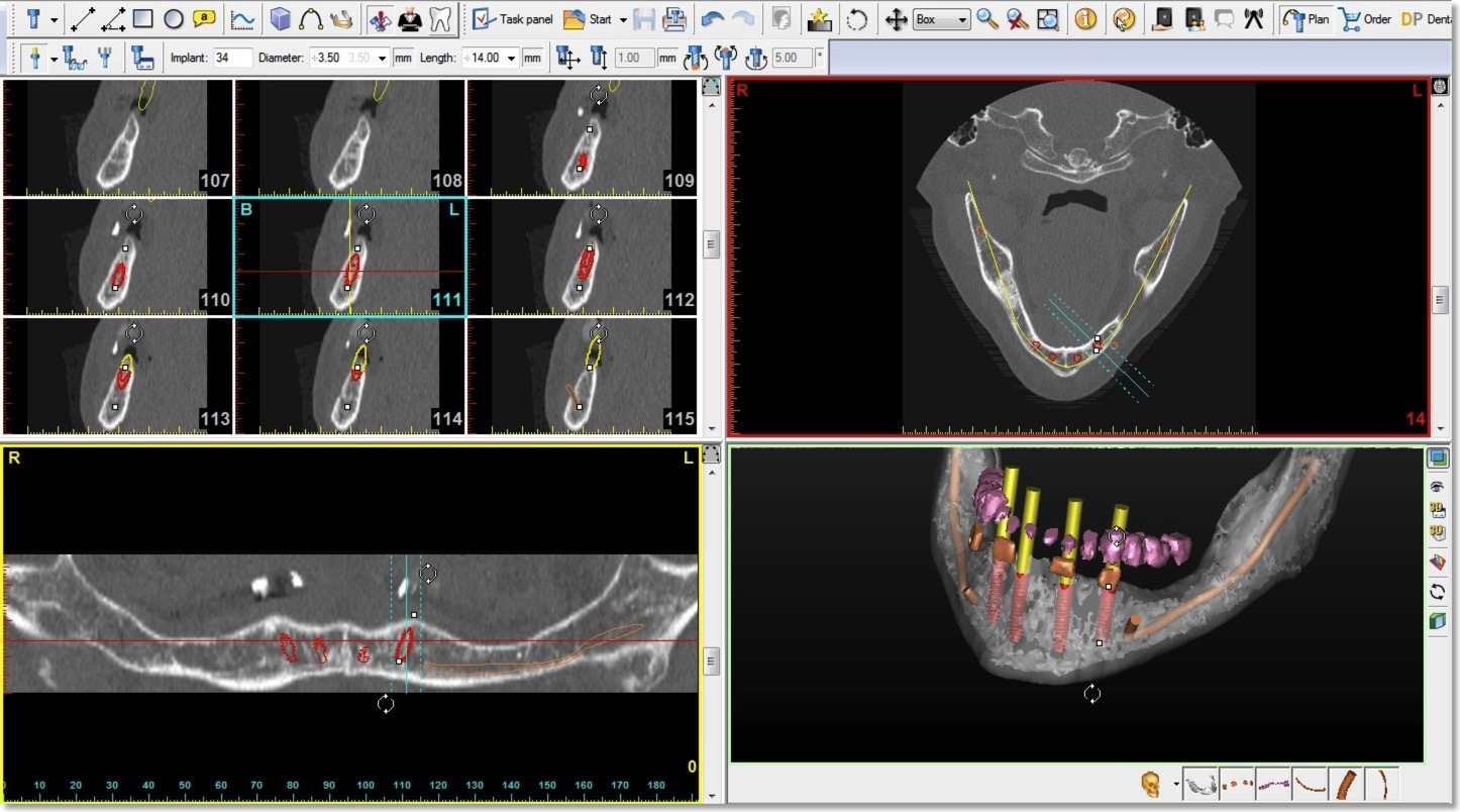 Dental Implant Consultations for Patients | Virtual Reality - World ...